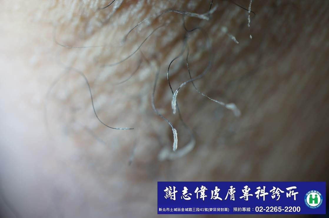 可觀焉-謝志偉皮膚科醫師的筆記: 當腋毛生垢了-腋毛菌(tricomycosis axillaris)