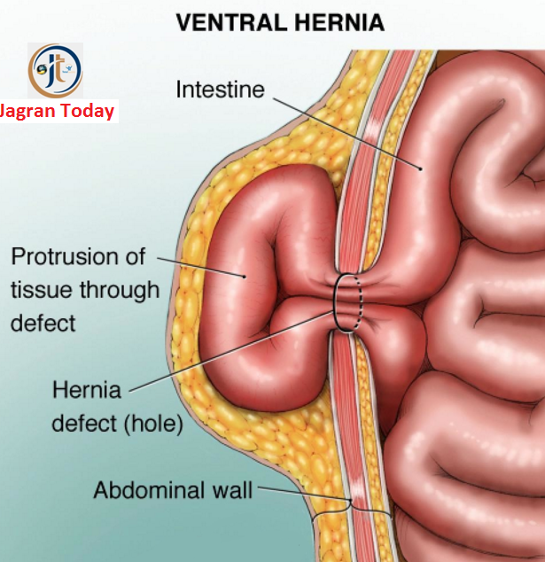 Causes and Symptoms of Hernia