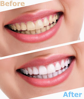 Simple Ways to Whiten Your Teeth Easily