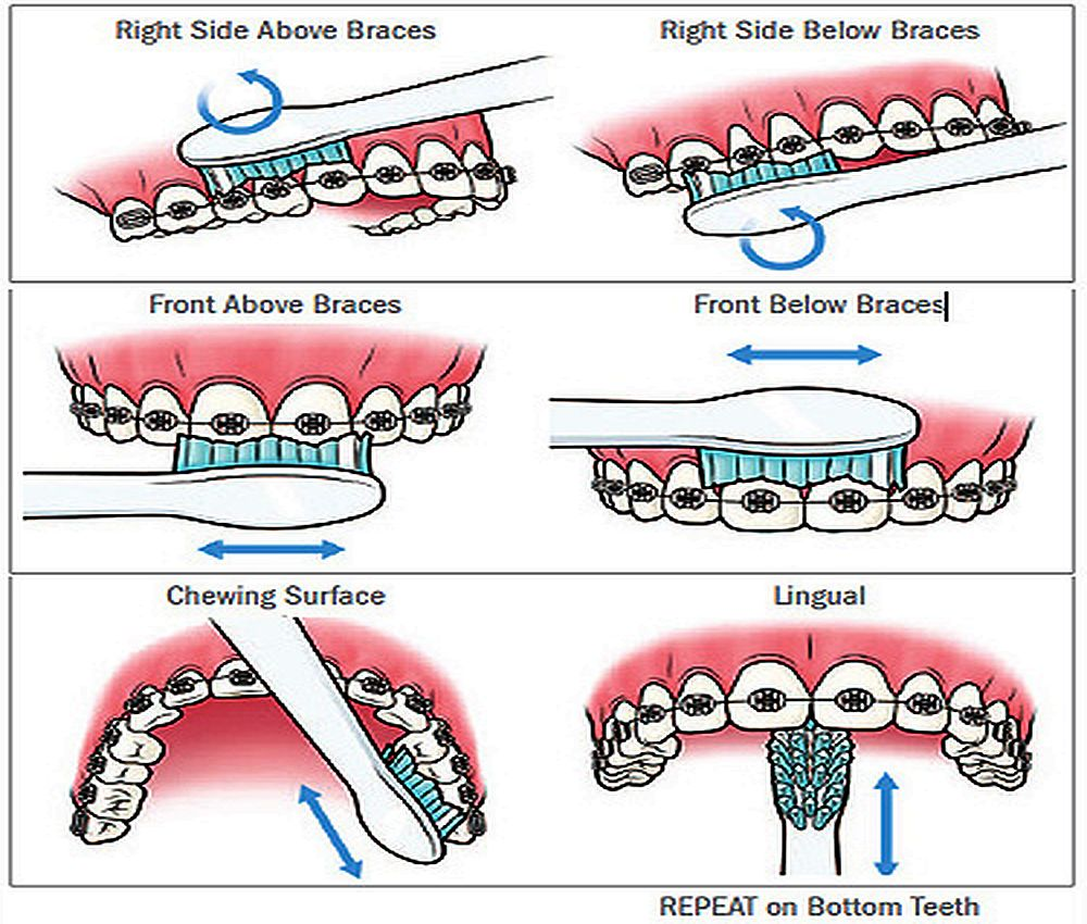 oral-hygiene-orthodontics