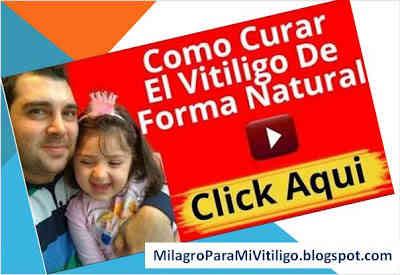como-curar-el-vitiligo-5-pasos-para-cura-natural-del-vitiligo-de-manchas-blancas