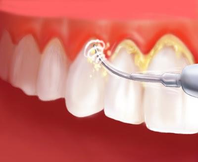 penskaleran, scaling, cuci gigi