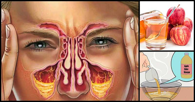 Help Fight Sinus Infection With Apple Cider Vinegar