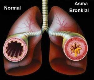 mengenal penyakit asma bronkial dan pengobatannya