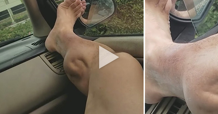 Painful video of post-workout muscle cramps