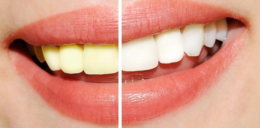 Kesehatankuw Blogspot Com 25 Cara Memutihkan Gigi Secara Alami