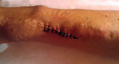 imagen de un brazo con una fístula arteriovenosa para hemodialisis