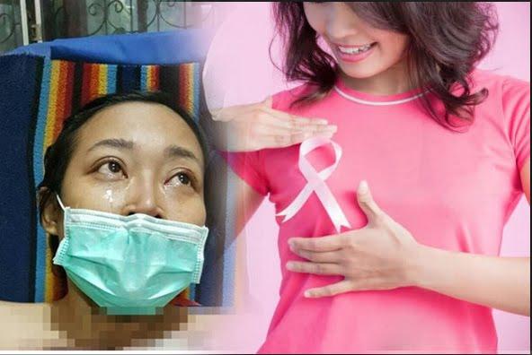 Bisa Jadi Alternatif Penderita Kanker Payudara Selain Kemoterapi Ternyata Metode Ini Dibilang Paling Ampuh