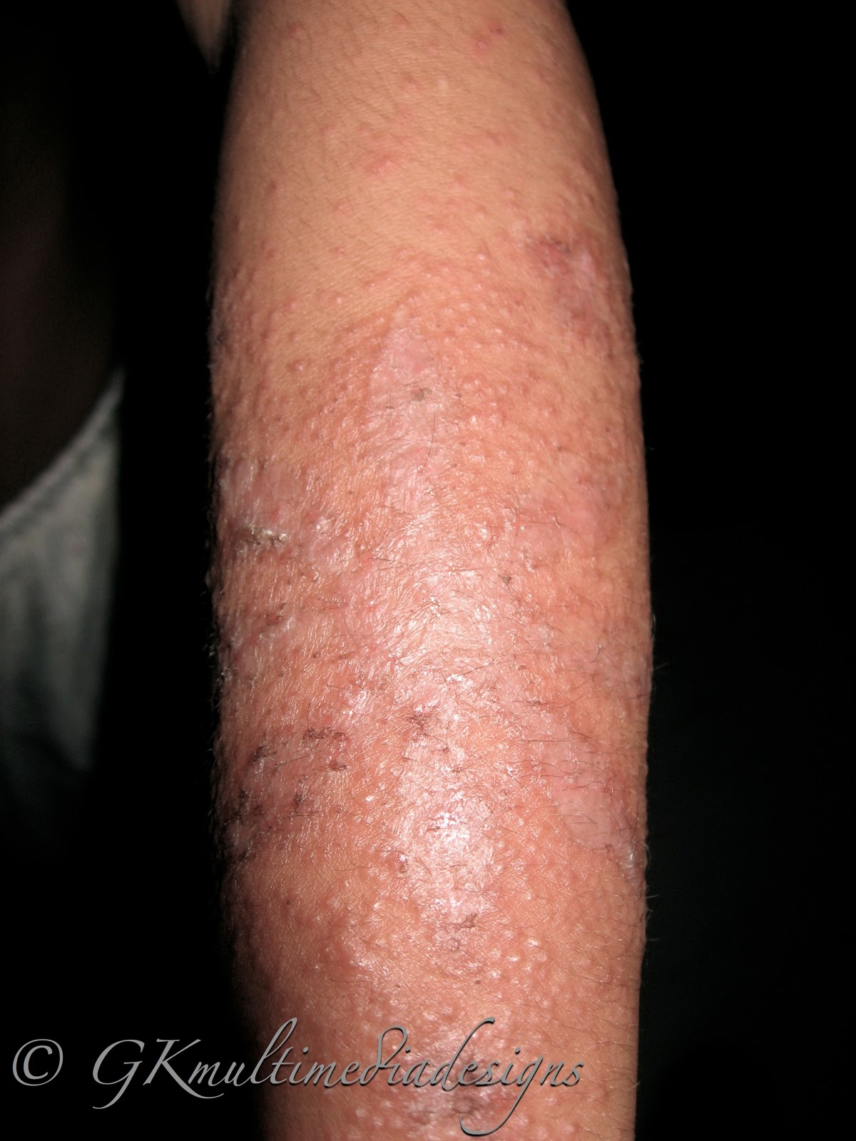 Henna Tattoo Allergy Symptoms: Anything Under The Sun: Beware Of Henna Tattoo Allergy
