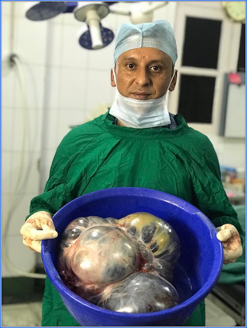 Doctor Samir Sharma in Darjeeling extract 10 kg of Tumour