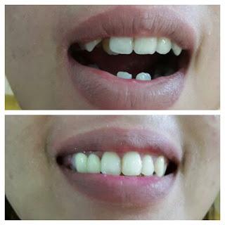 gambar foto contoh veneer gigi kelinci buatan manis cantik bali jember banyuwangi murah berkualitas di PERMATA DENTAL gambar gigi rusak yang di veneer gigi yang tidak rapi gigi renggang gigi patah cuil rompal pendek karies hitam kuning