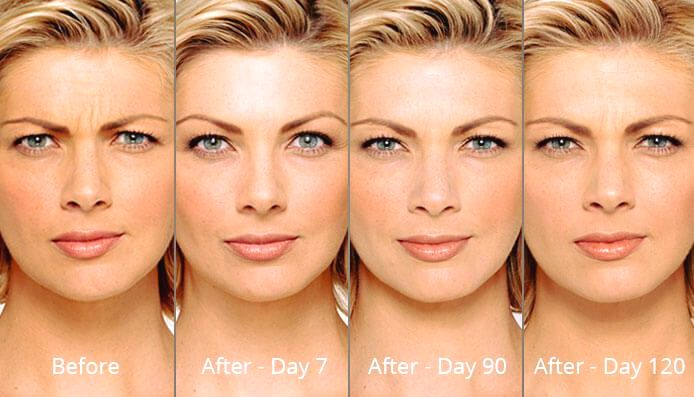 Longer-Lasting Botox Injections Mean Less Trips to the Clinic
