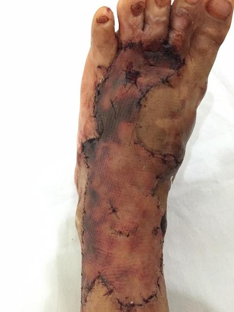 sau 1 tuần phẫu thuật tái tạo đôi chân của bé đã dẩn phục hồi trở lại.