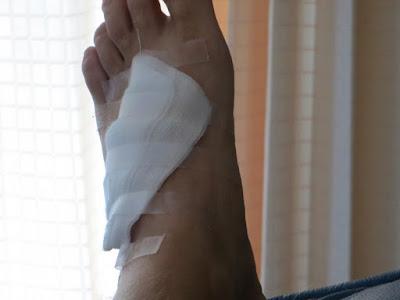 Нога с наложенным бинтом