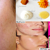 Treat Pimple Quickly Using This 10 Best Simple Treatments You Can Do At Home!