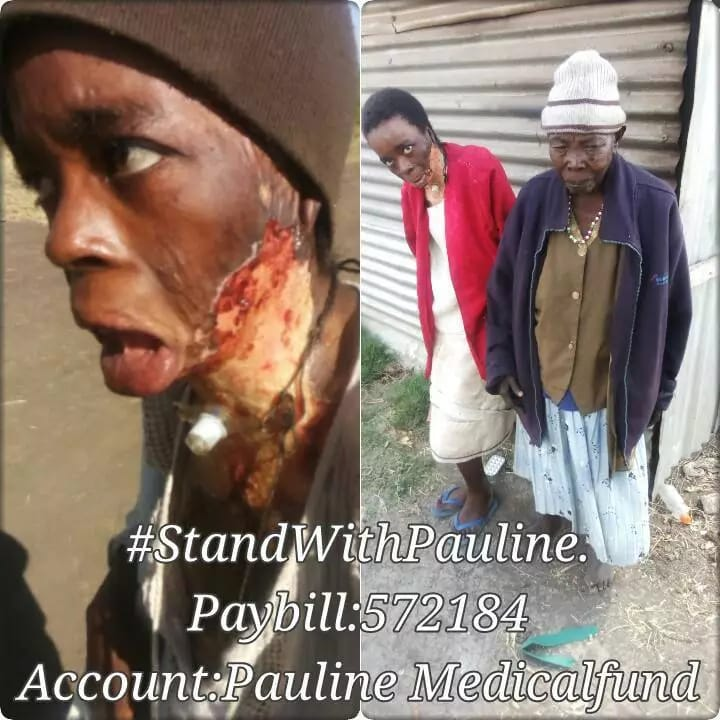 Husband sets wife on fire in violent domestic abuse attack (photos)