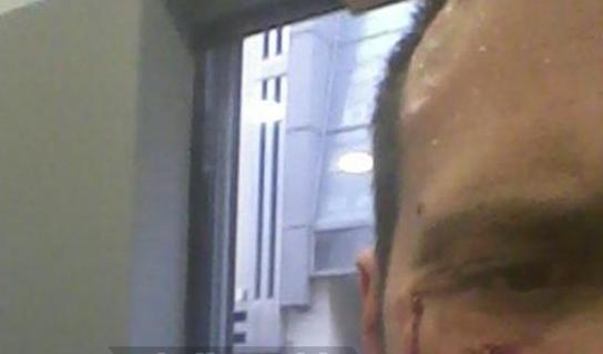 Εξάρχεια - αγέλη συμμοριτών έσπασε στο ξύλο οδοντίατρο, επειδή τους είχε κάνει παρατήρηση για τη μουσική τον Ιούλιο