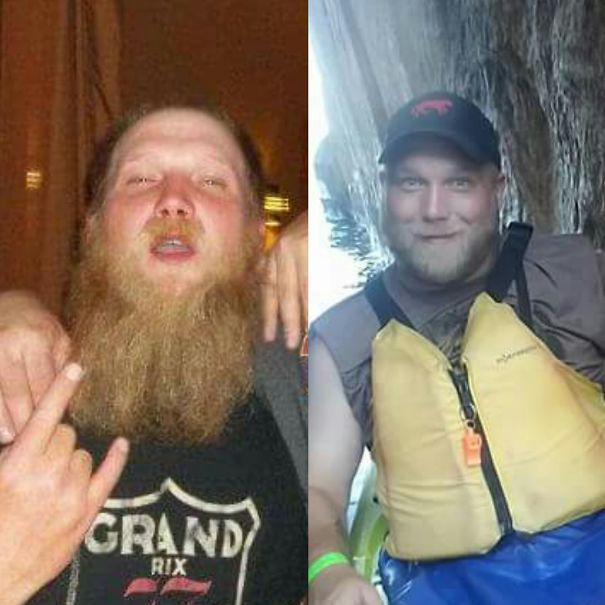 10+ Before-And-After Pics Show What Happens When You Stop Drinking - 11 Years Sober