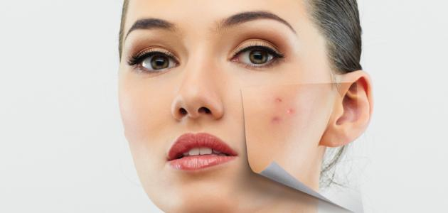 Islam Information Centers Acne Treatment For Oily Skin Naturally