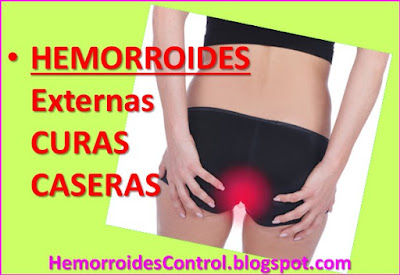 como-deshacerse-de-las-hemorroides-externas-remedios-caseros-aliviar-dolor