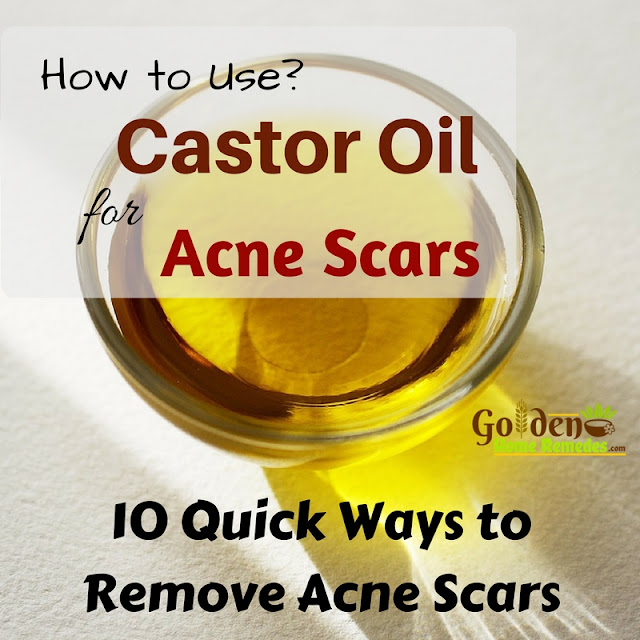 Castor Oil For Acne Scars, Castor Oil Acne Scars, Is Castor Oil Good For Acne Scars, How To Use Castor Oil For Acne Scars, Castor Oil And Acne Scars, How To Get Rid Of Acne Scars, How To Get Rid Of Acne Scars Fast, Home Remedies For Acne Scars, Acne Scars Treatment,
