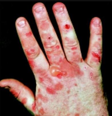 Skin Disease Porphyria