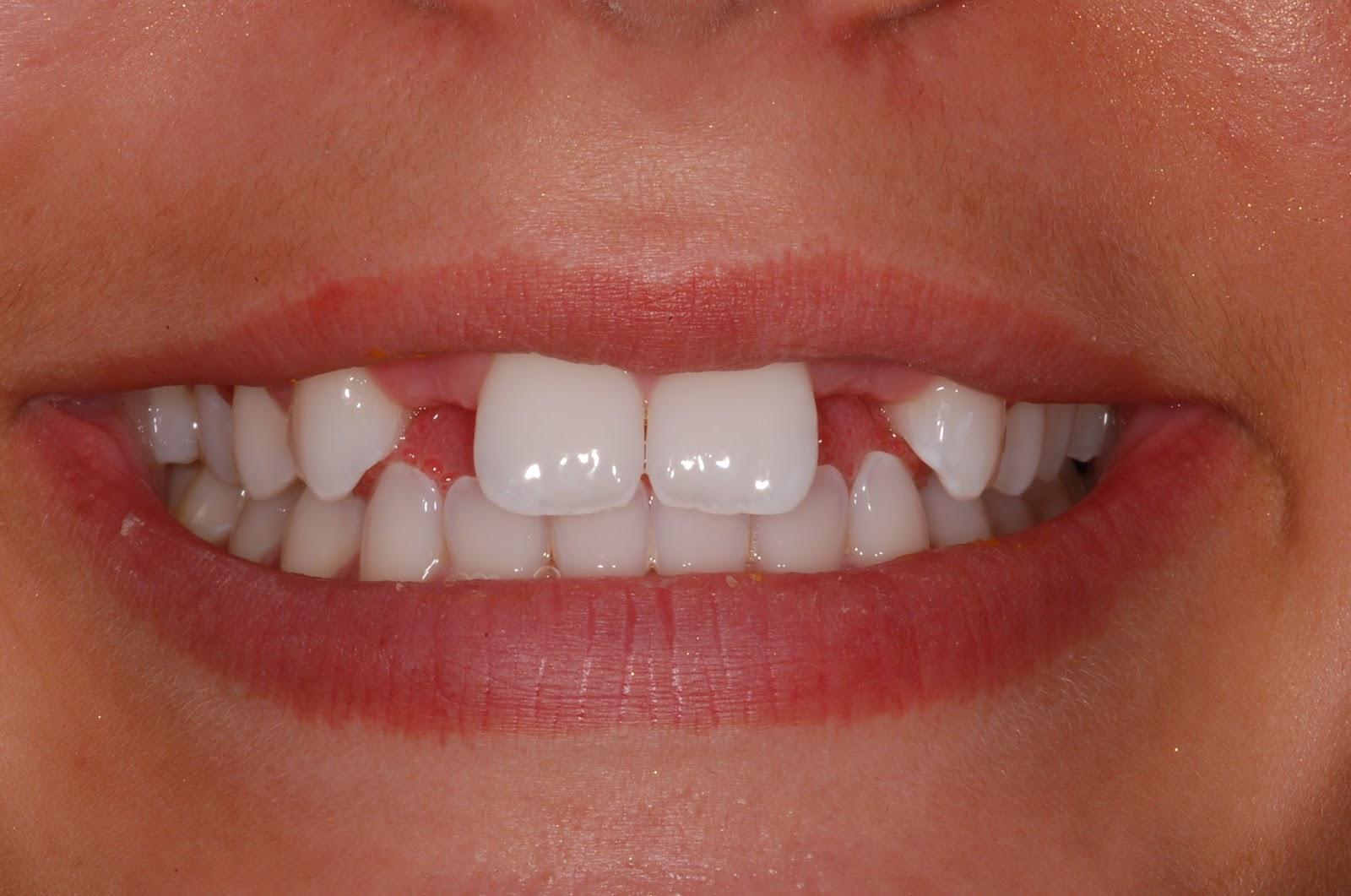 Dental Flipper Alternatives