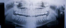 Douleur des dents de sagesse Impactée