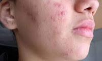 que-causa-el-acne-como-tratarlo