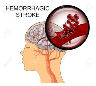 Obat Herbal Stroke Iskemik & Hemoragik