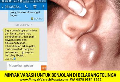 Testimoni Varash Classic Untuk benjolan di belakang telinga