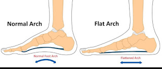 podiatrist recommended shoes-1