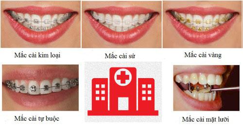 Kết quả hình ảnh cho sau khi bọc răng sứ có niềng răng được không