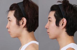 sebelum dan sesudah operasi plastik hidung Korea-1
