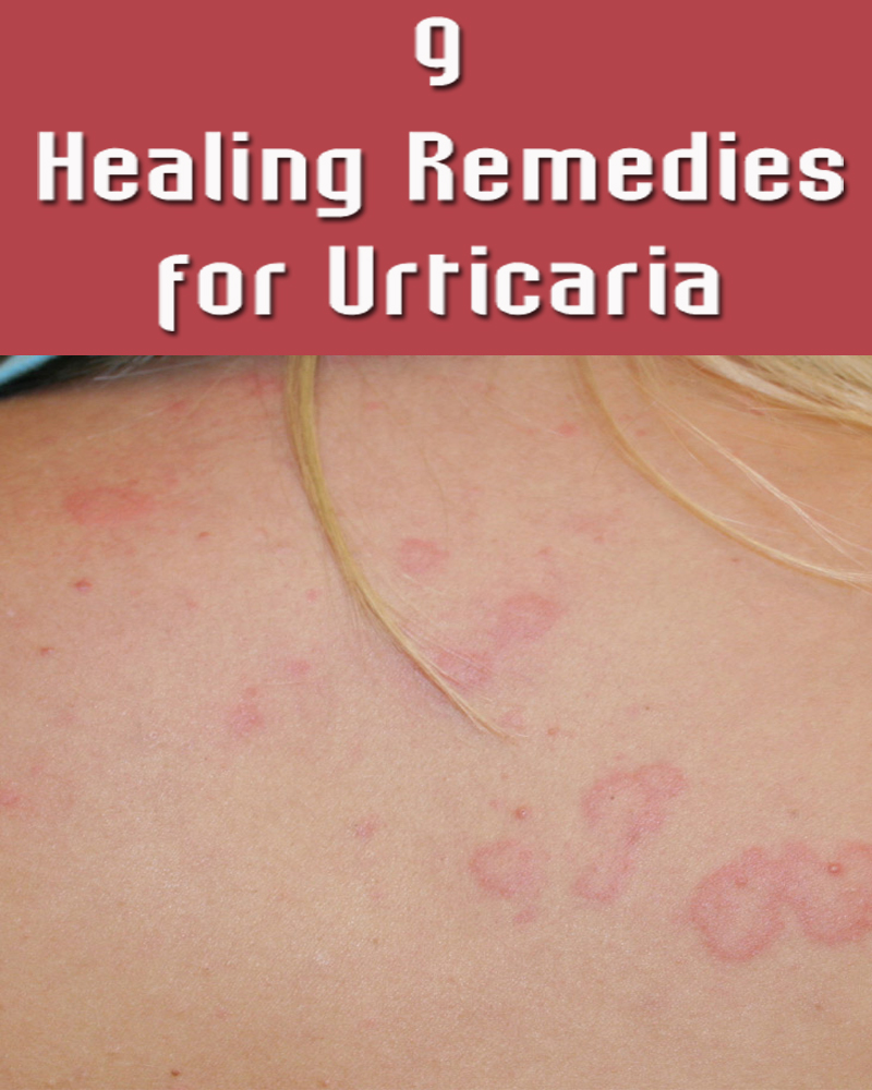 9 Healing Remedies for Urticaria