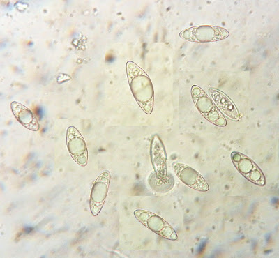 Microstoma protractum spores