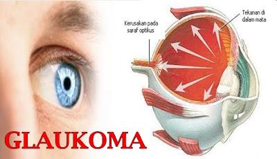obat glaukoma herbal