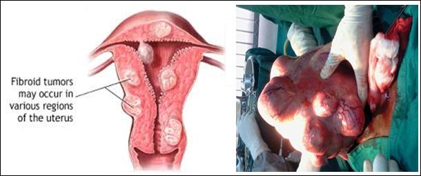 Hasil gambar untuk operasi fibroid