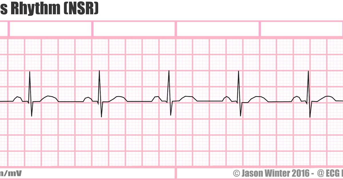 Peaceful image for ekg practice strips printable