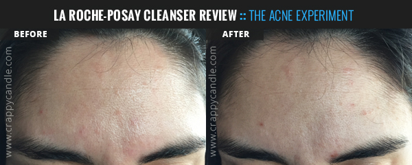 La Roche-Posay Toleriane Cleanser Before & After :: The Acne Experiment