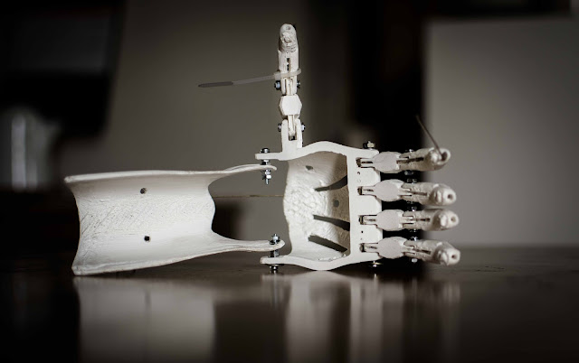First Printed 3D Print on Human Hand, Scientists Get Success