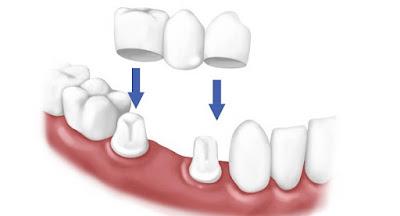 Bọc răng sứ giải pháp thay thế răng bị mẻ tốt nhất