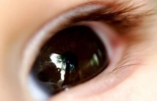 Efek Mata Terkena Minyak Kayu Putih