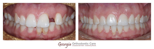 Space closing, space consolidation, diastema closing, restoratives, non extraction, missing teeth, extracted teeth, Orthodontics, orthodontists, Clear, Invisible, Braces, Invisalign, underbite,class III, face mask, non-surgery, non-extraction, crossbite, overbite, class II, crooked, spaced, crowding, teeth, severe, jaw alignment, cosmetics, implants, children, dentists, dentistry, friendly, adults, children, family, Lawrenceville, Norcross, Buford, Hamilton Mill, Dacula, Auburn, Sugar Hill, Sugar Loaf, Doraville, Chamblee, Stone Mountain, Decatur, Collins Hill, Snellville, Suwanee, Grayson, Lilburn, Duluth, Cumming, Alpharetta, Marietta, Dekalb, Gwinnett, County, Atlanta, North Georgia, GA, Georgia, 30043, 30093, affordable, Vietnamese, Spanish, weekend, Saturday, appointments, Dr. Quang Nguyen, Georgia Orthodontic Care, Nguyen Orthodontics.