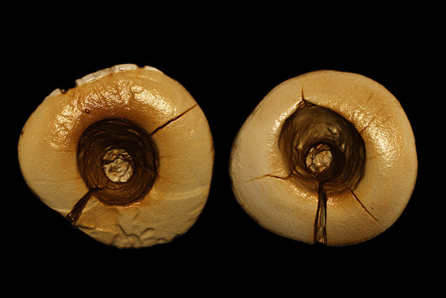 Earliest example of dental fillings found In Italy