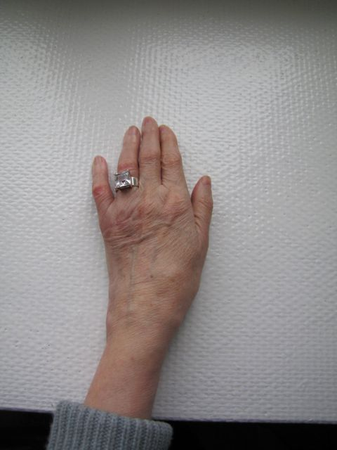 Most Design Ideas Broken Knuckle Symptoms Pictures, And