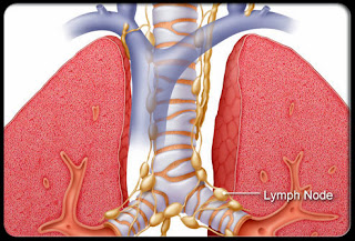 Causes, Symptoms, Treatment, and Prognosis of Stage IV Lung Cancer