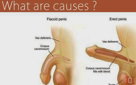 What causes big penis