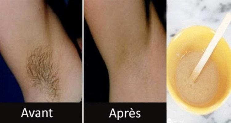 إزالة شعر الإبط و المناطق الحساسة نهائياً في دقيقتين فقط