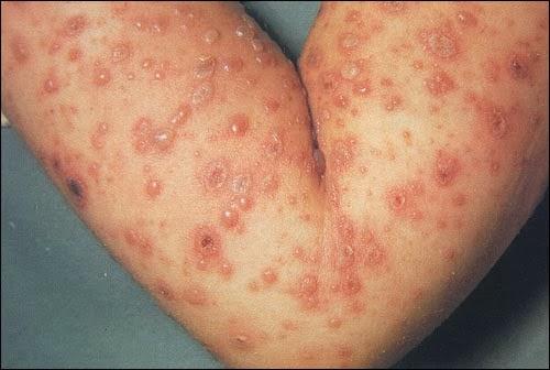 obat herpes zoster